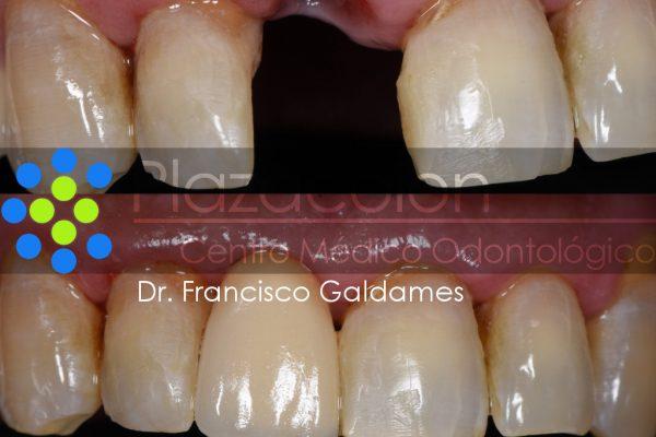 Dr. Francisco Galdames