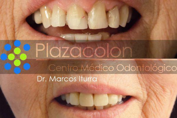 Dr. Marcos Iturra