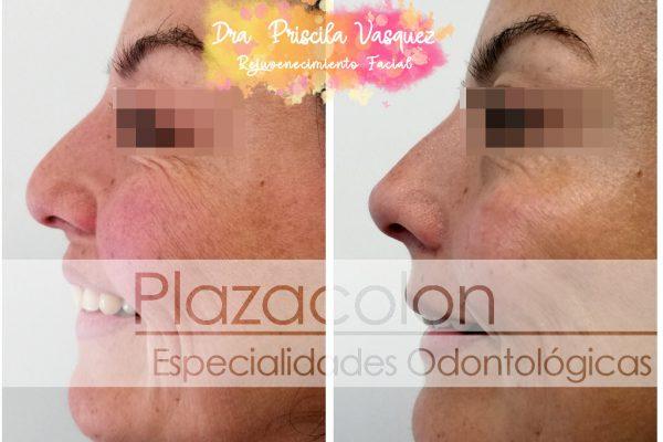 Rejuvenecimiento Facial - Dra. Vásquez