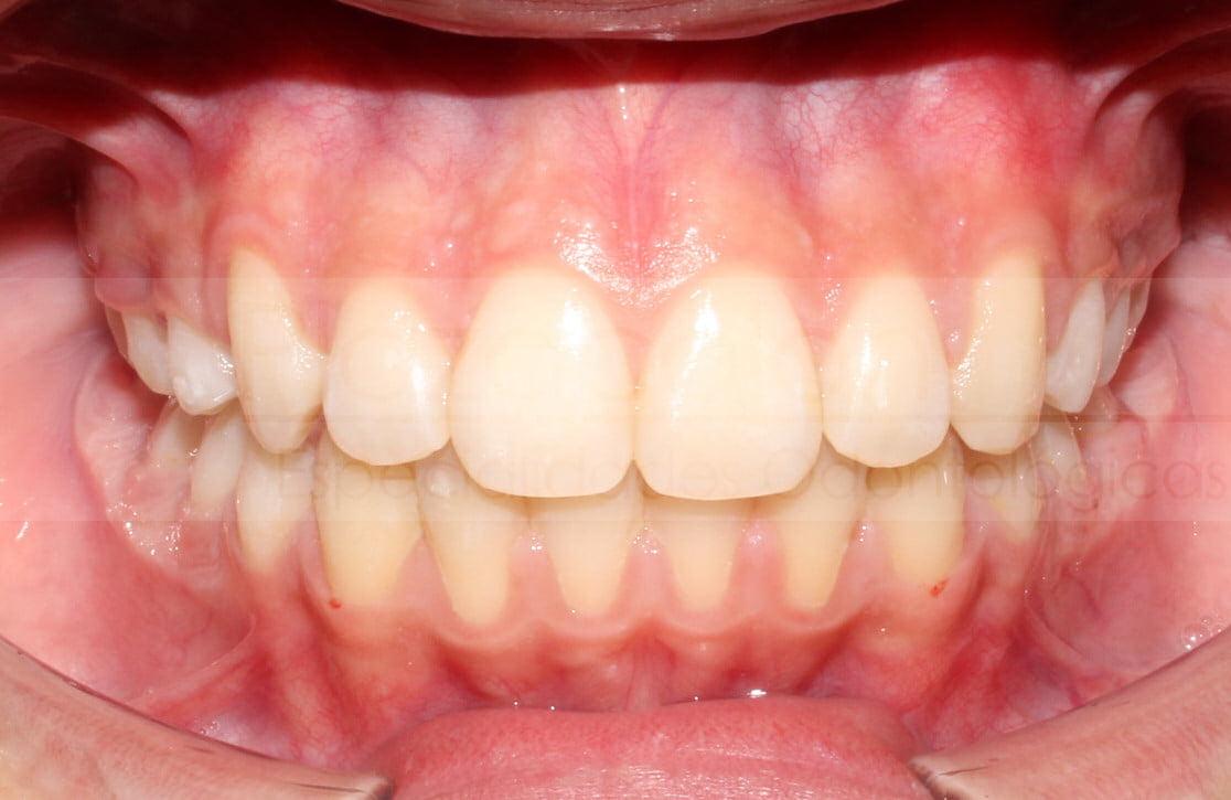 Dra Claudia Alvarez Ortodoncia