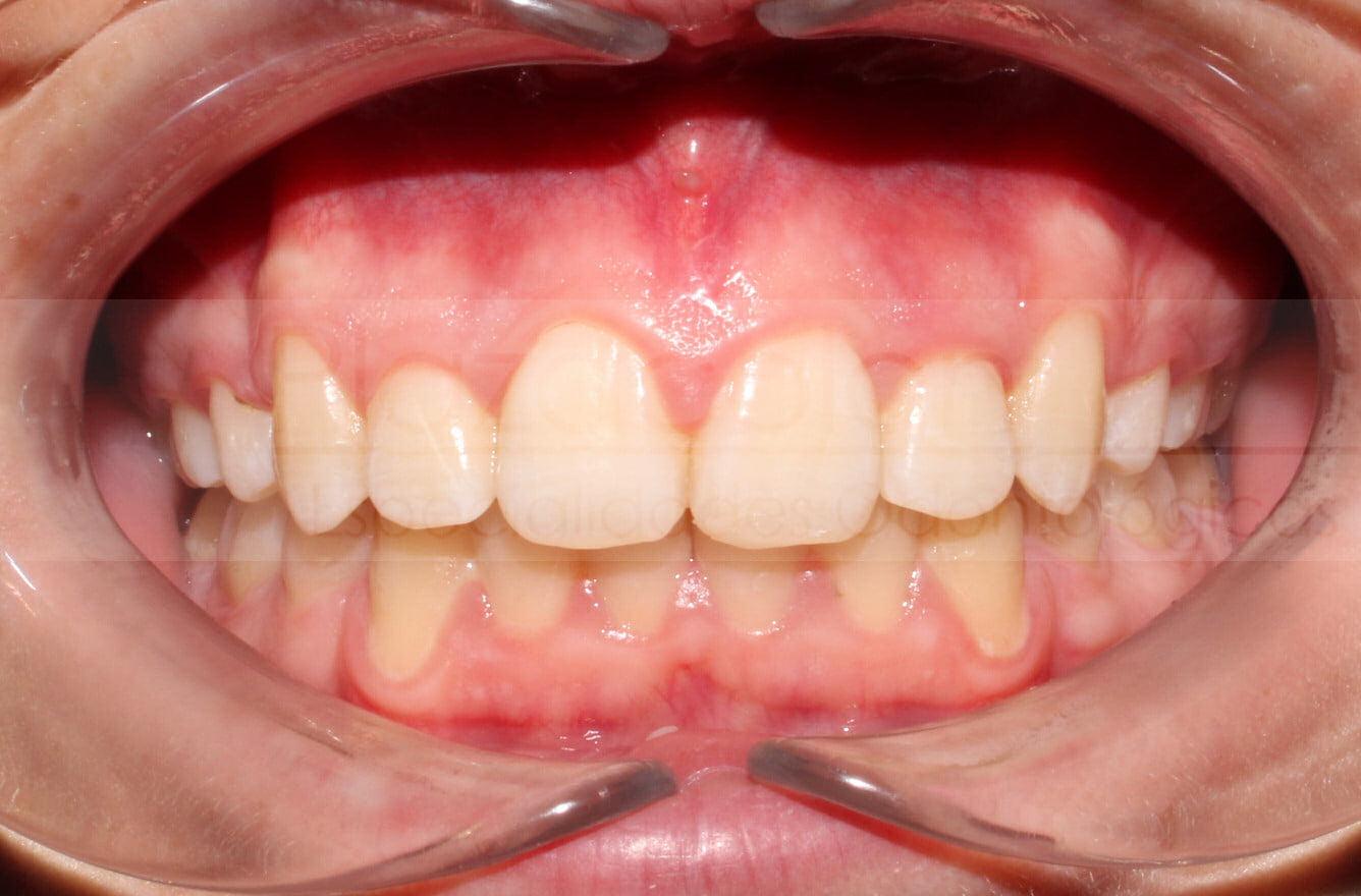 Dra Claudia Alvarez Ortodoncista